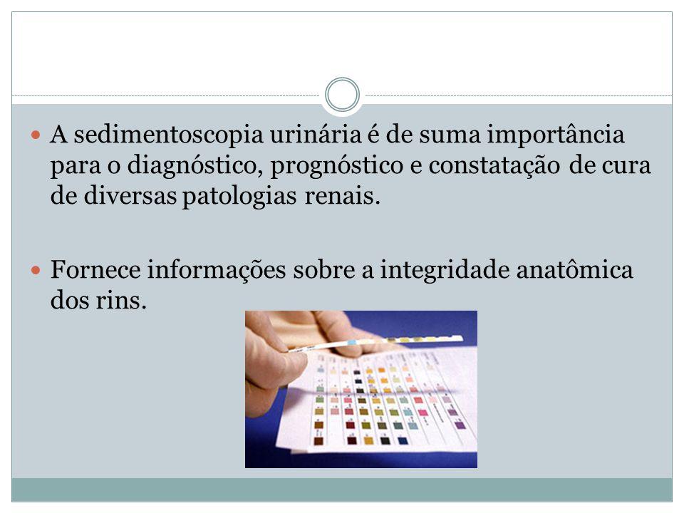 A sedimentoscopia urinária é de suma importância para o diagnóstico, prognóstico e constatação de cura de diversas patologias renais. Fornece informaç