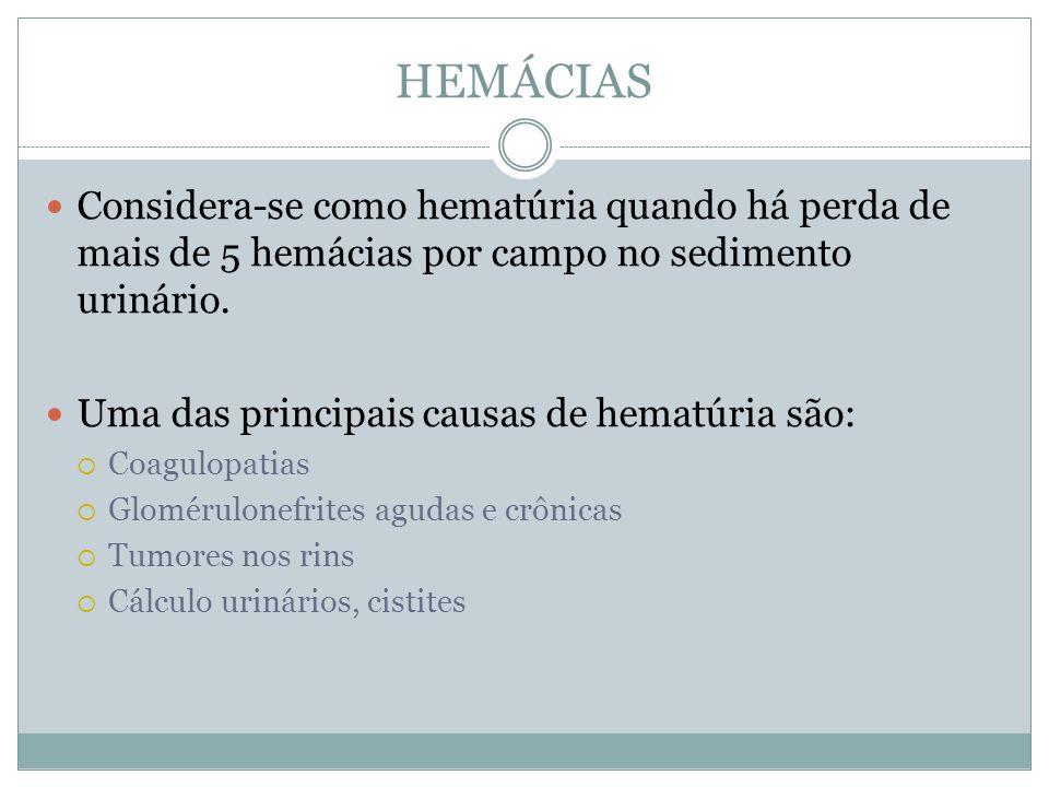 HEMÁCIAS Considera-se como hematúria quando há perda de mais de 5 hemácias por campo no sedimento urinário. Uma das principais causas de hematúria são