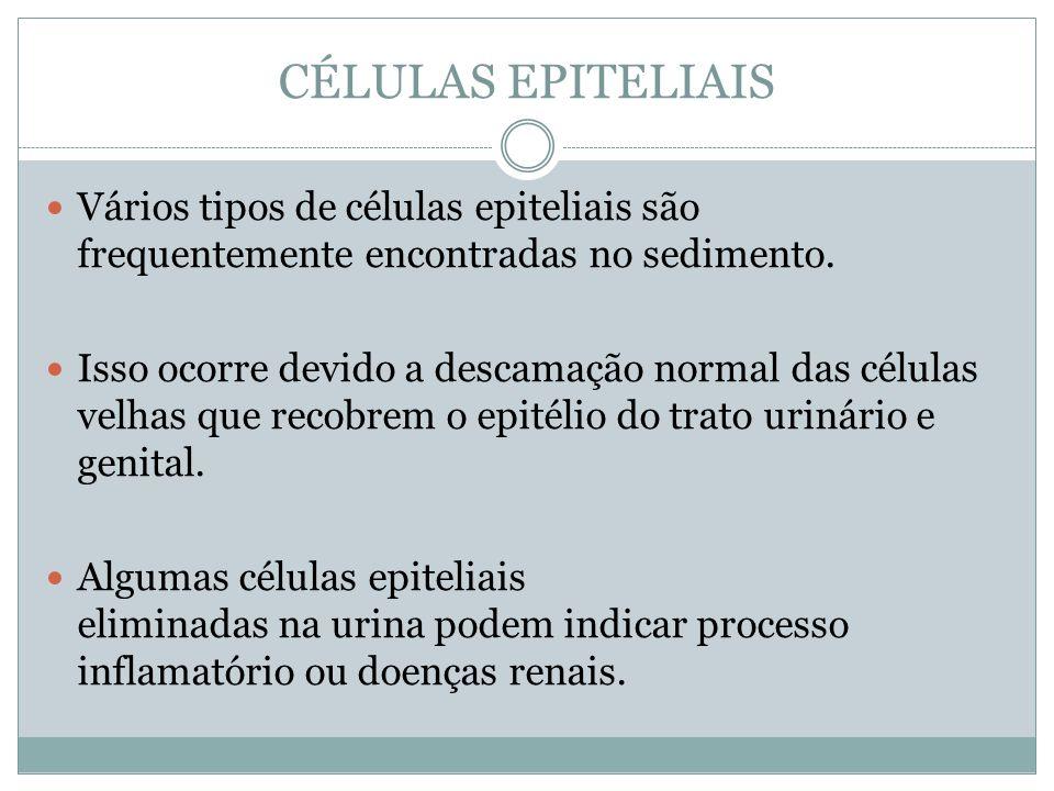 CÉLULAS EPITELIAIS Vários tipos de células epiteliais são frequentemente encontradas no sedimento. Isso ocorre devido a descamação normal das células