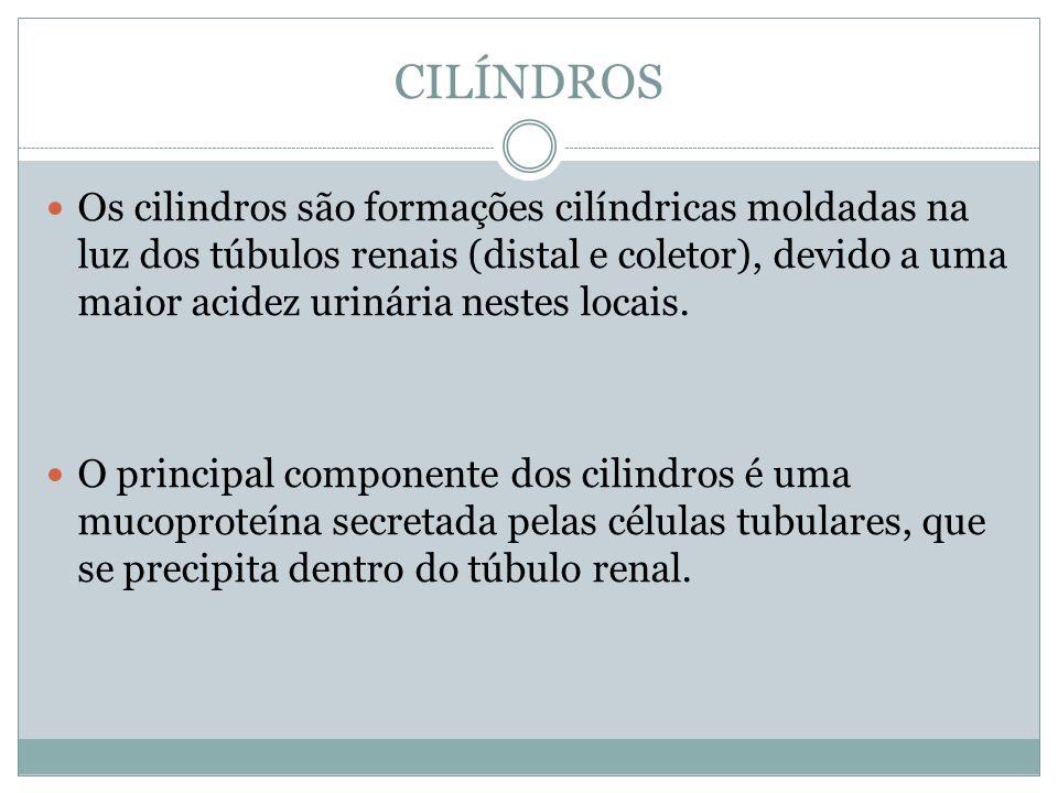 CILÍNDROS Os cilindros são formações cilíndricas moldadas na luz dos túbulos renais (distal e coletor), devido a uma maior acidez urinária nestes loca