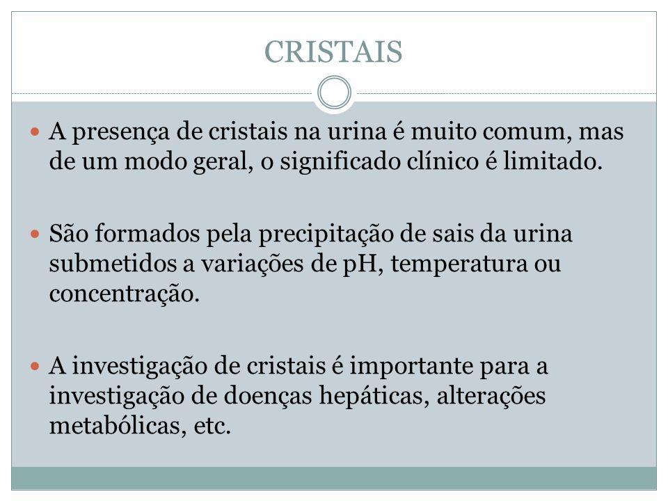 CRISTAIS A presença de cristais na urina é muito comum, mas de um modo geral, o significado clínico é limitado. São formados pela precipitação de sais