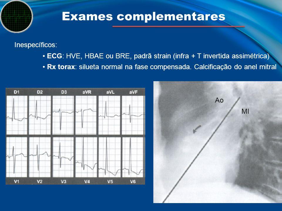 Exames complementares Inespecíficos: ECG: HVE, HBAE ou BRE, padrã strain (infra + T invertida assimétrica) Rx torax: silueta normal na fase compensada
