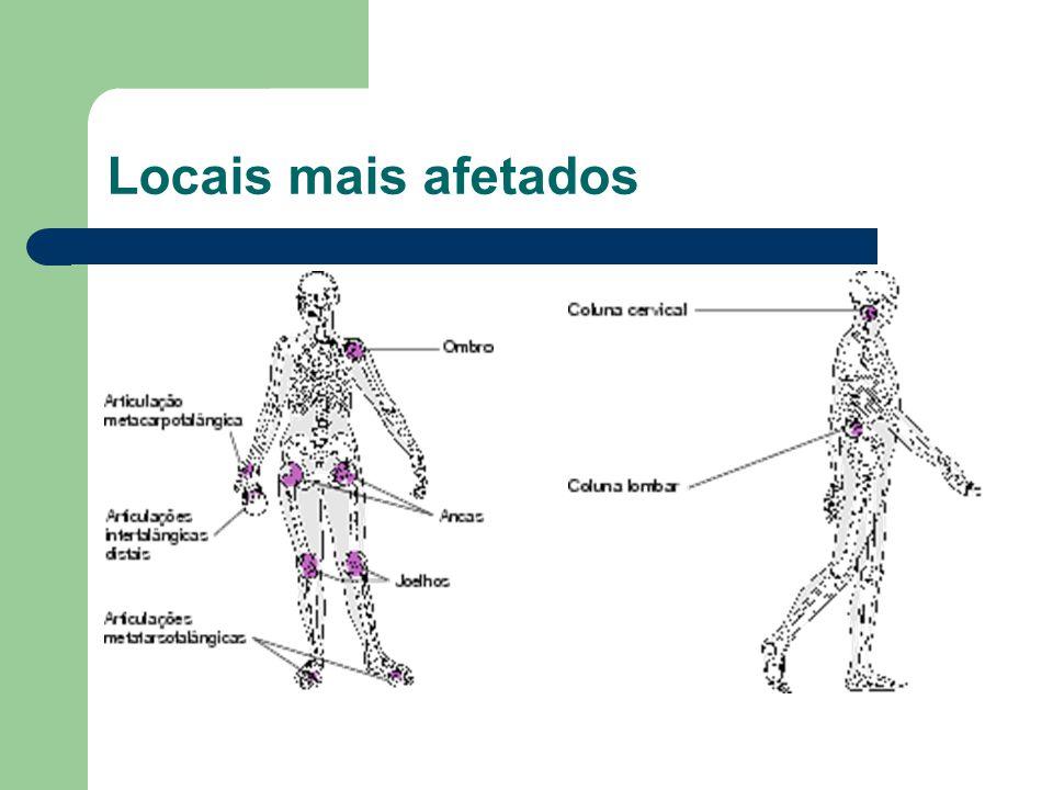 O exercício deve ser compensado com o repouso das articulações dolorosas; contudo, a imobilização de uma articulação tende mais a agravar a artrose do que a melhorá-la.