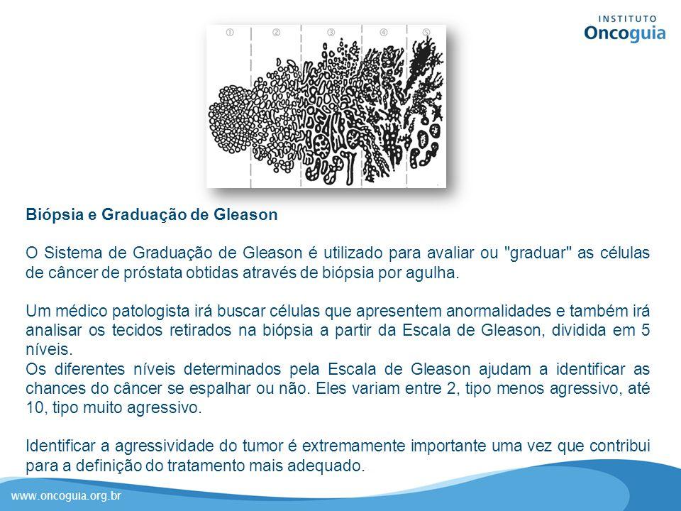 www.oncoguia.org.br Biópsia e Graduação de Gleason O Sistema de Graduação de Gleason é utilizado para avaliar ou