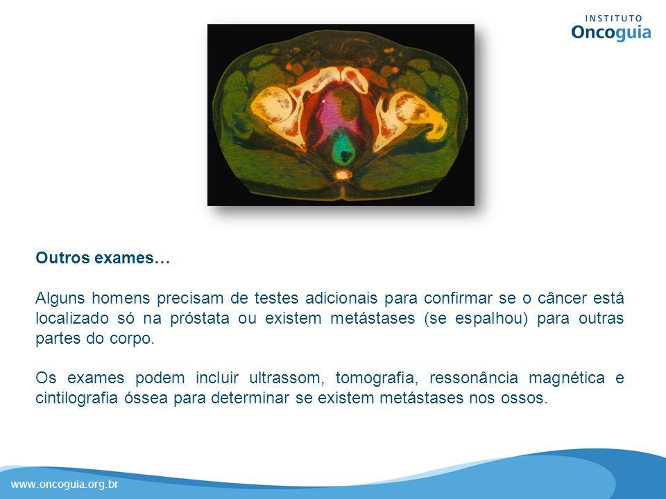 www.oncoguia.org.br Outros exames… Alguns homens precisam de testes adicionais para confirmar se o câncer está localizado só na próstata ou existem me