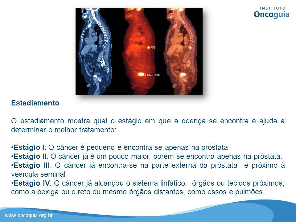 www.oncoguia.org.br Estadiamento O estadiamento mostra qual o estágio em que a doença se encontra e ajuda a determinar o melhor tratamento: Estágio I: