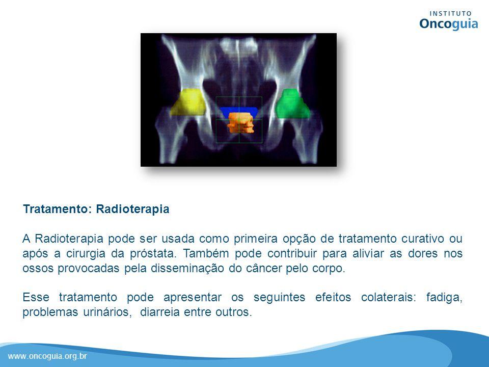 www.oncoguia.org.br Tratamento: Radioterapia A Radioterapia pode ser usada como primeira opção de tratamento curativo ou após a cirurgia da próstata.