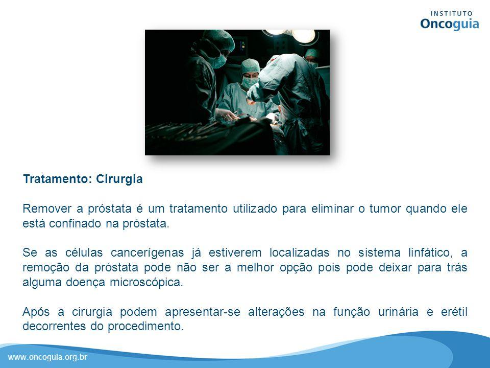 www.oncoguia.org.br Tratamento: Cirurgia Remover a próstata é um tratamento utilizado para eliminar o tumor quando ele está confinado na próstata. Se