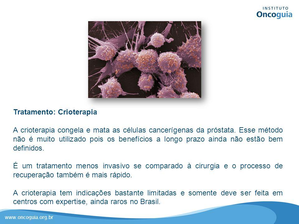www.oncoguia.org.br Tratamento: Crioterapia A crioterapia congela e mata as células cancerígenas da próstata. Esse método não é muito utilizado pois o