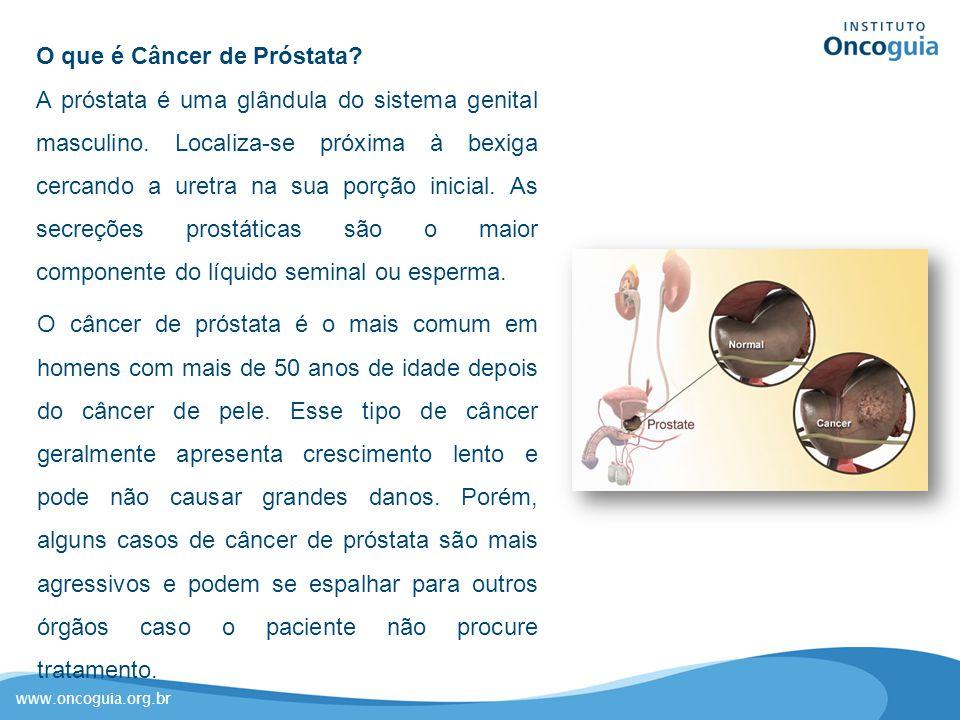www.oncoguia.org.br O que é Câncer de Próstata? A próstata é uma glândula do sistema genital masculino. Localiza-se próxima à bexiga cercando a uretra