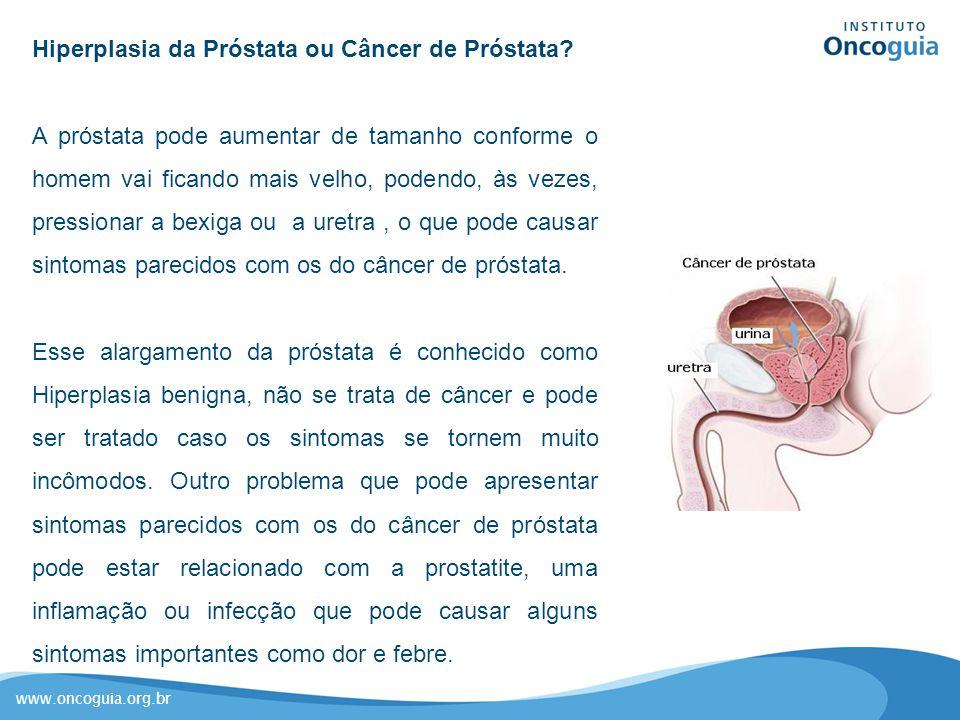 www.oncoguia.org.br Hiperplasia da Próstata ou Câncer de Próstata? A próstata pode aumentar de tamanho conforme o homem vai ficando mais velho, podend