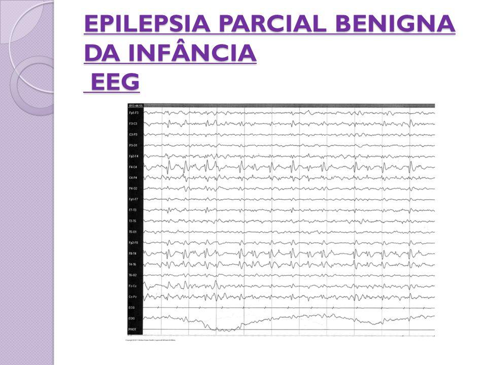 EPILEPSIA PARCIAL BENIGNA DA INFÂNCIA EEG