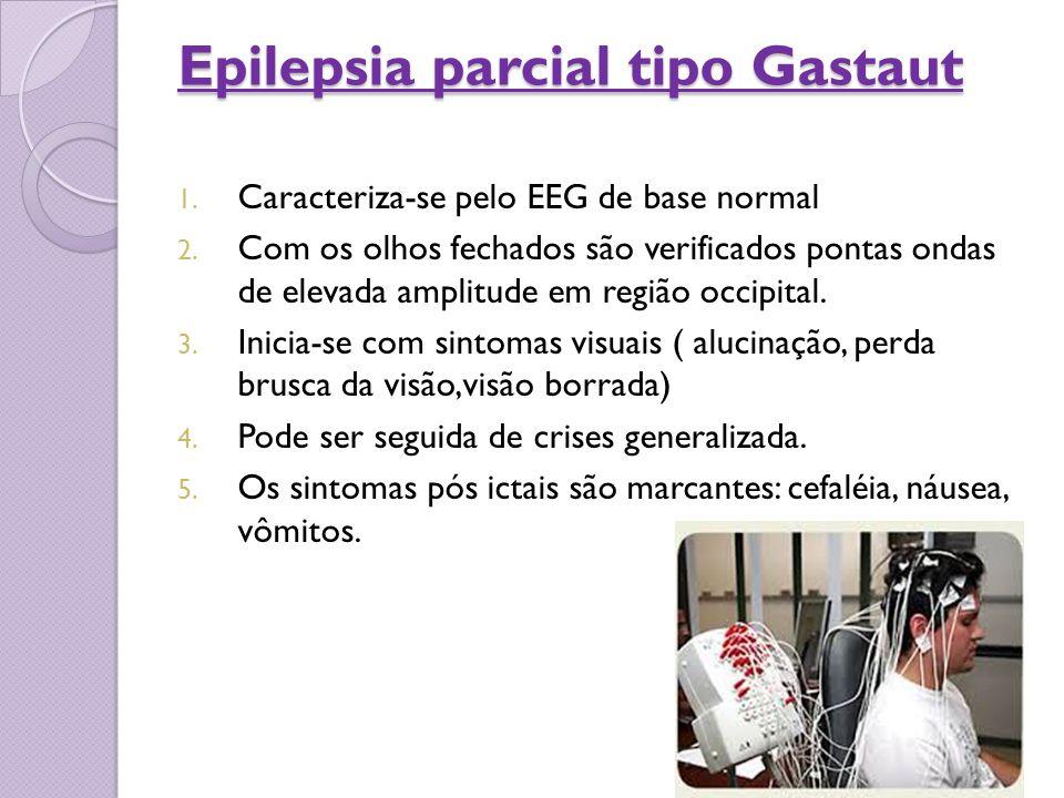 Epilepsia parcial tipo Gastaut 1. Caracteriza-se pelo EEG de base normal 2. Com os olhos fechados são verificados pontas ondas de elevada amplitude em