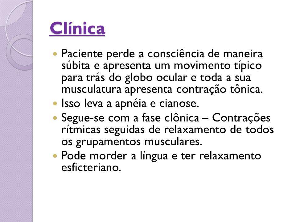 Clínica Paciente perde a consciência de maneira súbita e apresenta um movimento típico para trás do globo ocular e toda a sua musculatura apresenta co