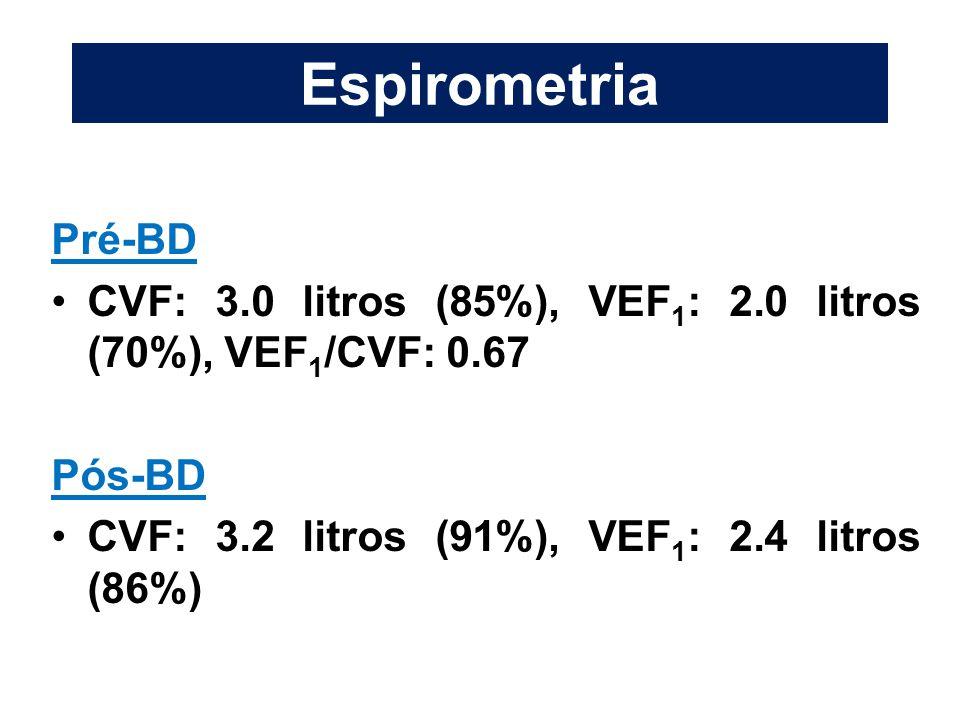 Espirometria Pré-BD CVF: 3.0 litros (85%), VEF 1 : 2.0 litros (70%), VEF 1 /CVF: 0.67 Pós-BD CVF: 3.2 litros (91%), VEF 1 : 2.4 litros (86%)
