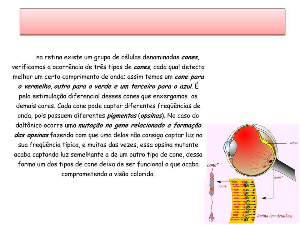 Hemofilia Não ocorre a coagulação do sangue Recessiva