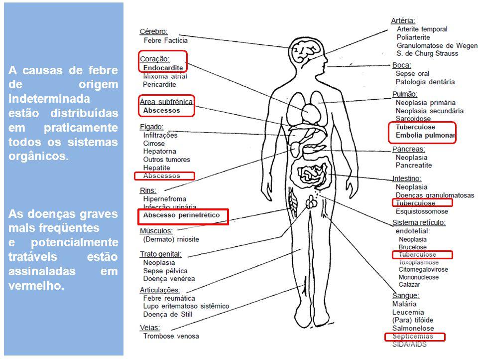 A causas de febre de origem indeterminada estão distribuídas em praticamente todos os sistemas orgânicos.
