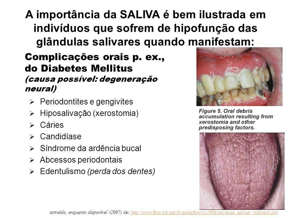 Complicações orais p. ex., do Diabetes Mellitus (causa possível: degeneração neural)  Periodontites e gengivites  Hiposalivação (xerostomia)  Cárie
