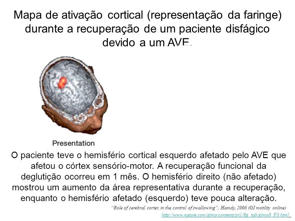 O paciente teve o hemisfério cortical esquerdo afetado pelo AVE que afetou o córtex sensório-motor. A recuperação funcional da deglutição ocorreu em 1