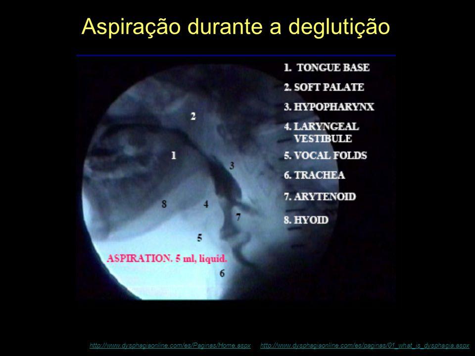 Aspiração durante a deglutição http://www.dysphagiaonline.com/es/Paginas/Home.aspxhttp://www.dysphagiaonline.com/es/Paginas/Home.aspx http://www.dysph