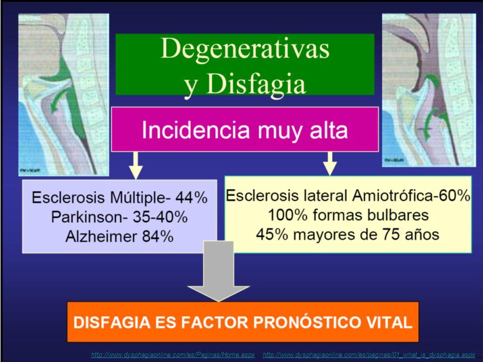 alteração ou dificuldade durante a deglutição http://www.dysphagiaonline.com/es/paginas/01_what_is_dysphagia.aspx http://www.dysphagiaonline.com/es/Paginas/Home.aspx