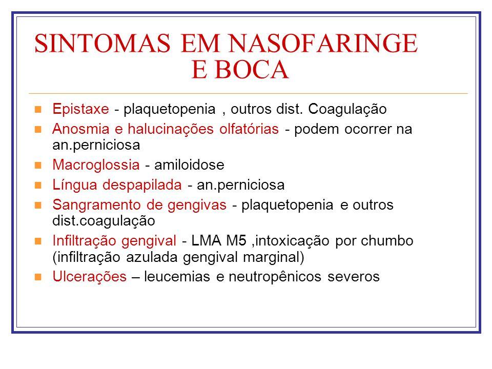 SINTOMAS EM NASOFARINGE E BOCA Epistaxe - plaquetopenia, outros dist. Coagulação Anosmia e halucinações olfatórias - podem ocorrer na an.perniciosa Ma