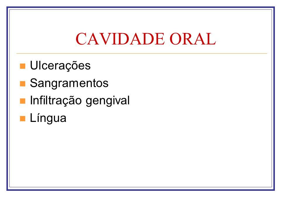 CAVIDADE ORAL Ulcerações Sangramentos Infiltração gengival Língua