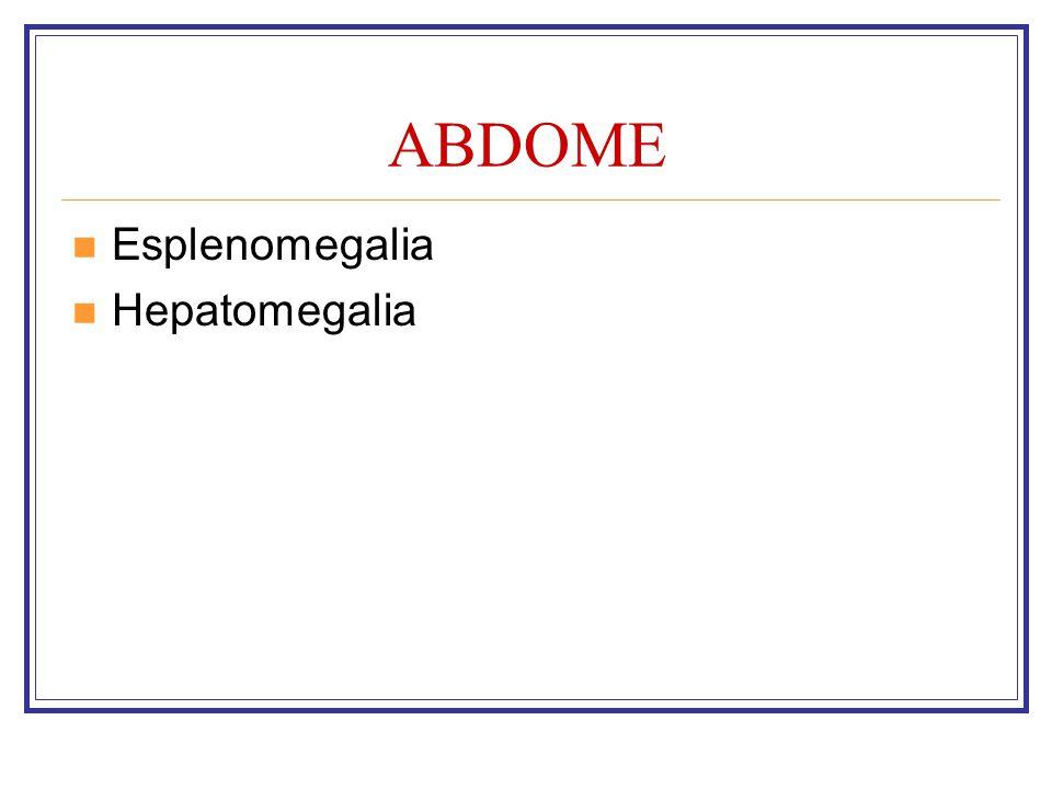 ABDOME Esplenomegalia Hepatomegalia