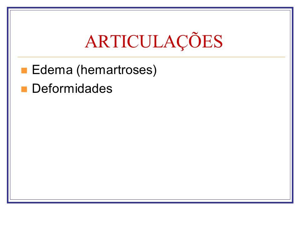 ARTICULAÇÕES Edema (hemartroses) Deformidades