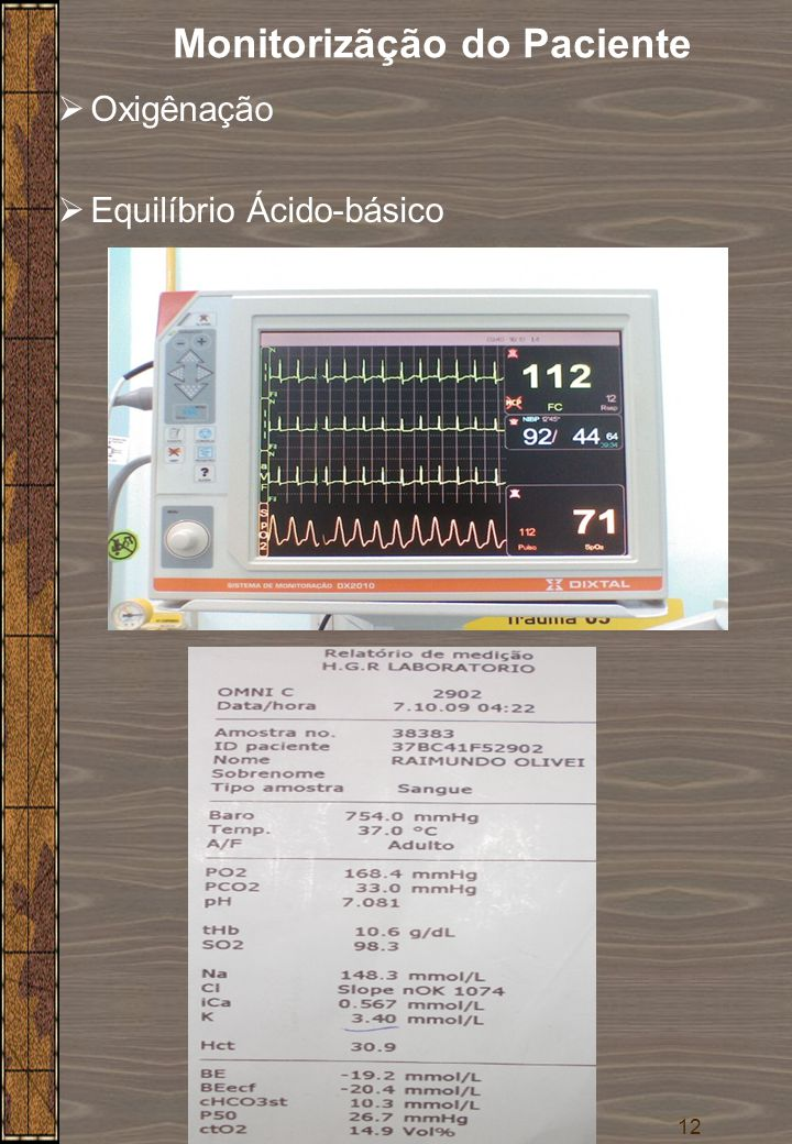 12  Oxigênação  Equilíbrio Ácido-básico Monitorizãção do Paciente