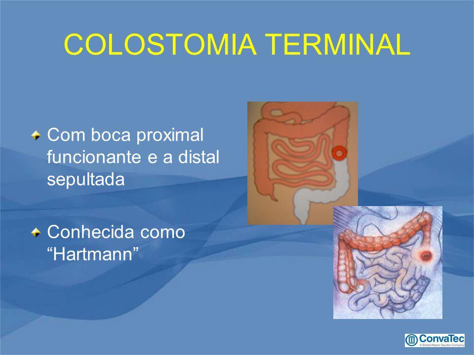"""COLOSTOMIA TERMINAL Com boca proximal funcionante e a distal sepultada Conhecida como """"Hartmann"""""""