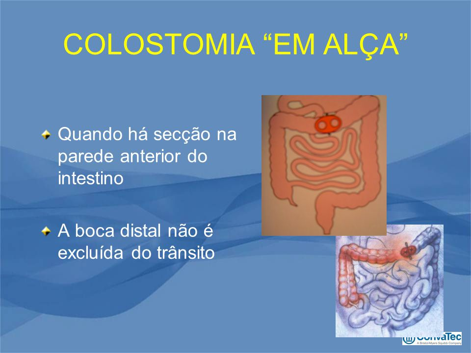 COLOSTOMIA EM ALÇA Quando há secção na parede anterior do intestino A boca distal não é excluída do trânsito