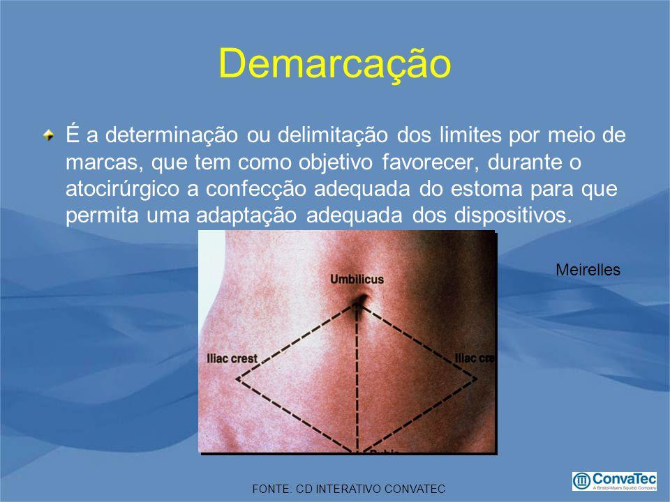 Demarcação É a determinação ou delimitação dos limites por meio de marcas, que tem como objetivo favorecer, durante o atocirúrgico a confecção adequada do estoma para que permita uma adaptação adequada dos dispositivos.