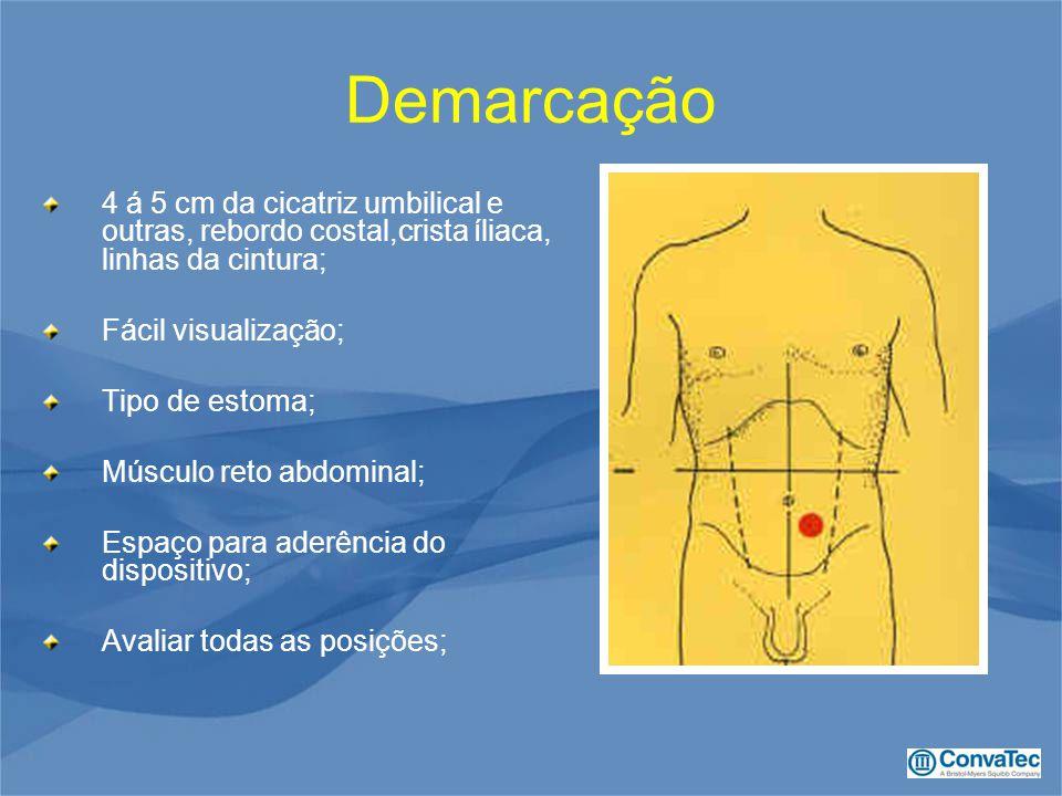 Demarcação 4 á 5 cm da cicatriz umbilical e outras, rebordo costal,crista íliaca, linhas da cintura; Fácil visualização; Tipo de estoma; Músculo reto