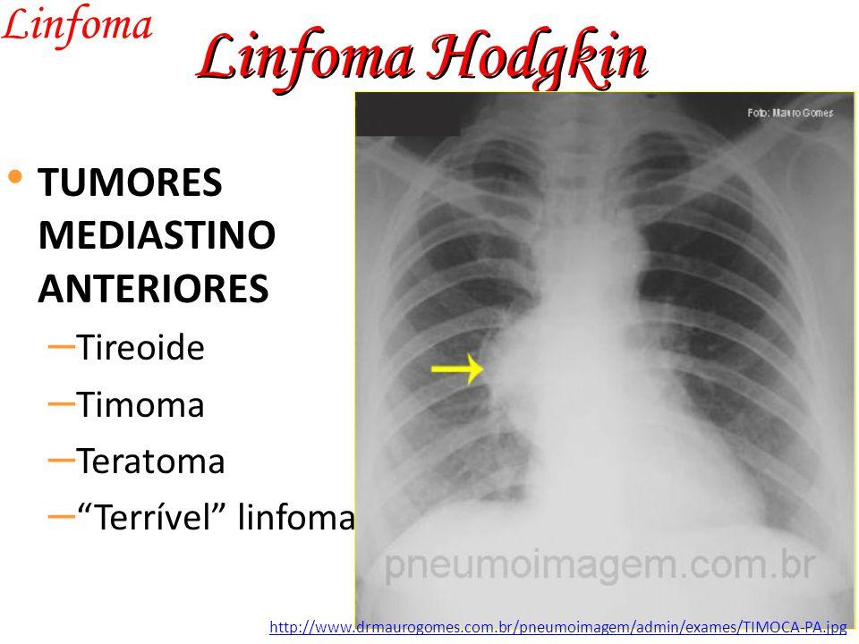 Linfoma Hodgkin Linfoma TUMORES MEDIASTINO ANTERIORES – Tireoide – Timoma – Teratoma – Terrível linfoma http://www.drmaurogomes.com.br/pneumoimagem/admin/exames/TIMOCA-PA.jpg