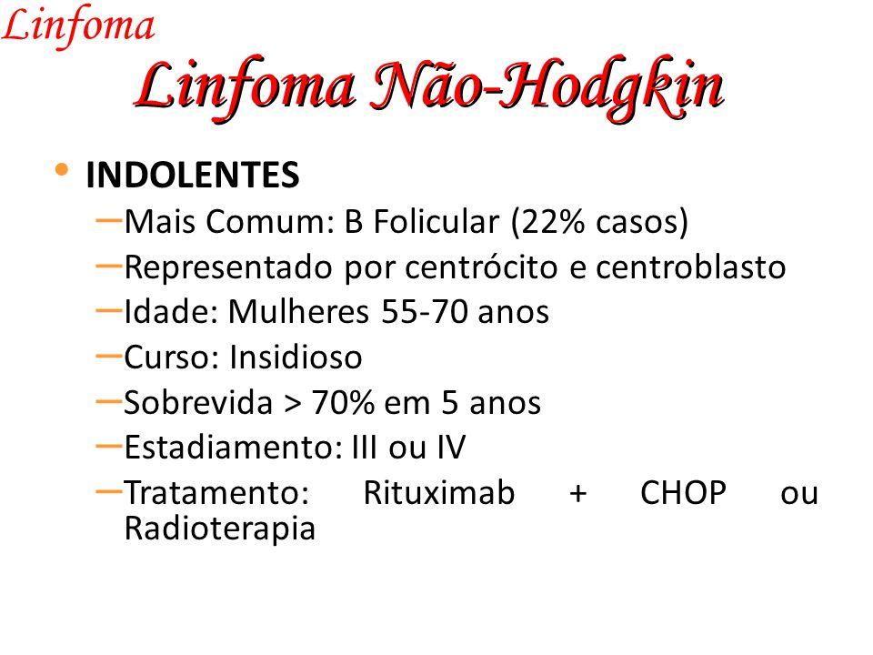 Linfoma Não-Hodgkin Linfoma INDOLENTES – Mais Comum: B Folicular (22% casos) – Representado por centrócito e centroblasto – Idade: Mulheres 55-70 anos