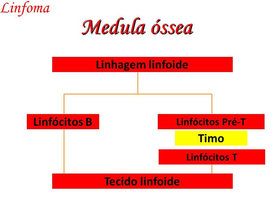 Medula óssea Linfoma Linfócitos B Linfócitos Pré-T Linhagem linfoide Timo Linfócitos T Tecido linfoide