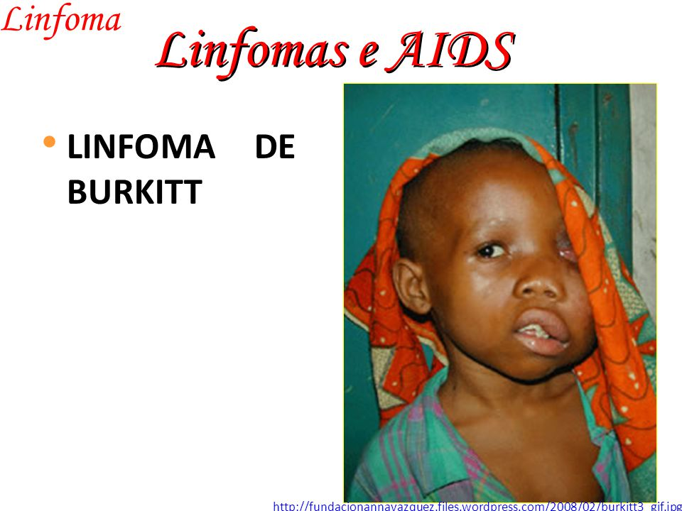 Linfomas e AIDS Linfoma LINFOMA DE BURKITT http://fundacionannavazquez.files.wordpress.com/2008/02/burkitt3_gif.jpg
