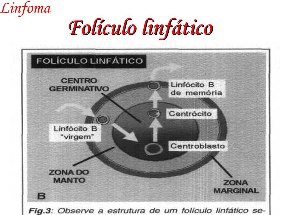 Folículo linfático Linfoma