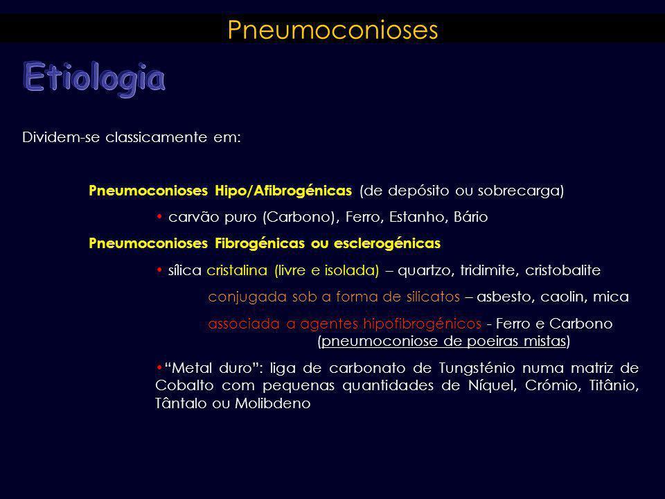 Pneumoconioses Dividem-se classicamente em: Pneumoconioses Hipo/Afibrogénicas (de depósito ou sobrecarga) carvão puro (Carbono), Ferro, Estanho, Bário