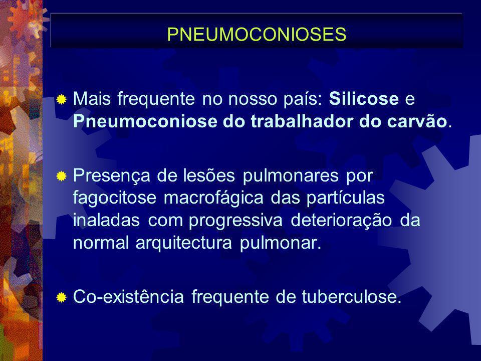 PNEUMOCONIOSES  Mais frequente no nosso país: Silicose e Pneumoconiose do trabalhador do carvão.  Presença de lesões pulmonares por fagocitose macro