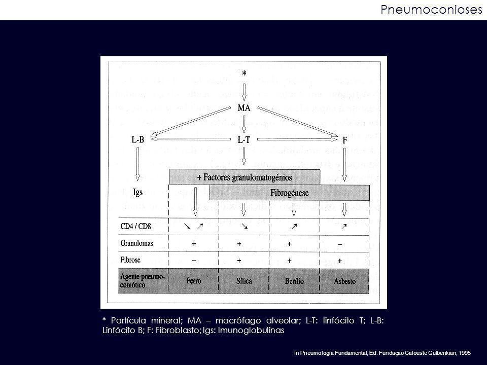 Pneumoconioses * Partícula mineral; MA – macrófago alveolar; L-T: linfócito T; L-B: Linfócito B; F: Fibroblasto; Igs: Imunoglobulinas In Pneumologia F