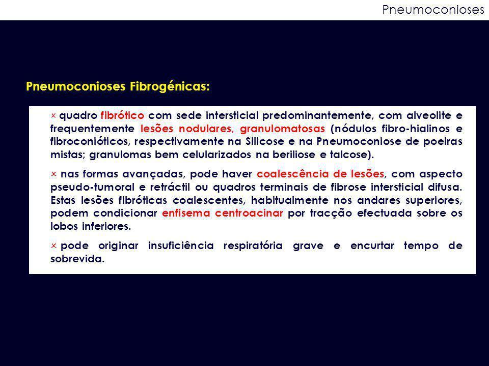 Pneumoconioses Pneumoconioses Fibrogénicas:  quadro fibrótico com sede intersticial predominantemente, com alveolite e frequentemente lesões nodulare