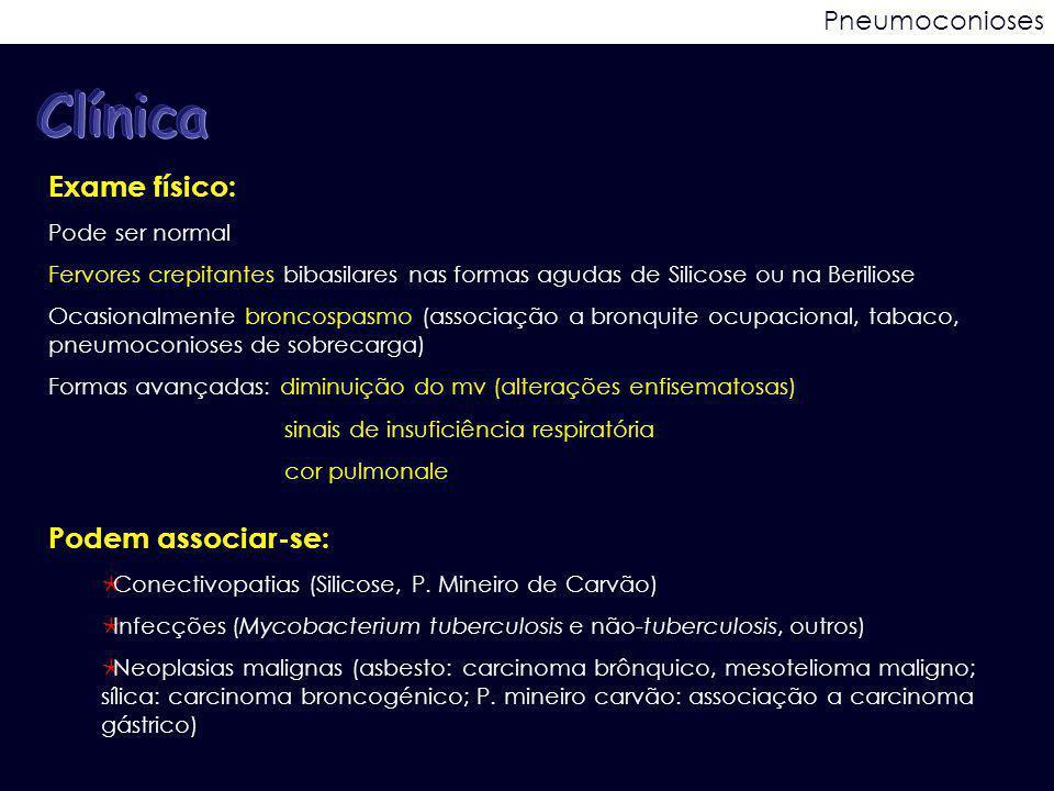 Pneumoconioses Exame físico: Pode ser normal Fervores crepitantes bibasilares nas formas agudas de Silicose ou na Beriliose Ocasionalmente broncospasm