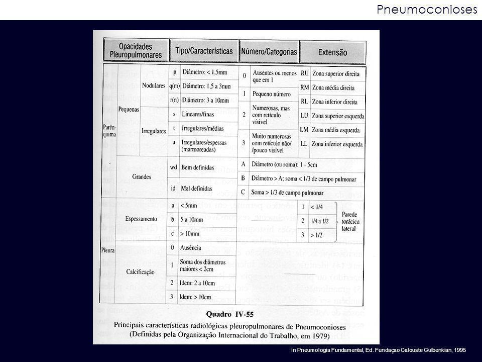Pneumoconioses In Pneumologia Fundamental, Ed. Fundaçao Calouste Gulbenkian, 1995