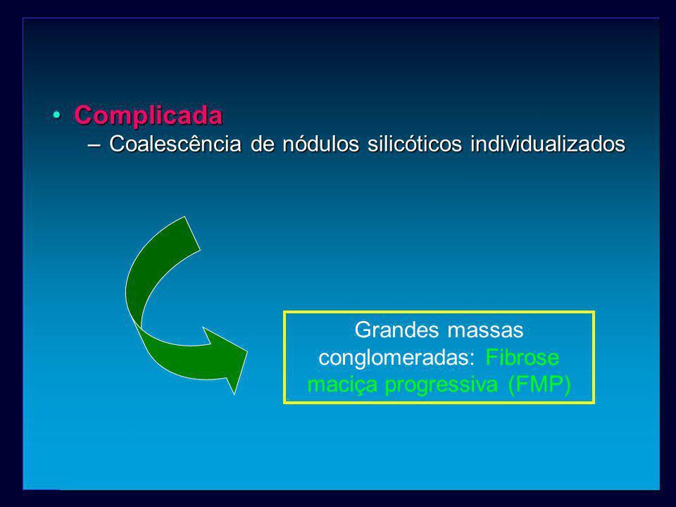 ComplicadaComplicada –Coalescência de nódulos silicóticos individualizados Grandes massas conglomeradas: Fibrose maciça progressiva (FMP)