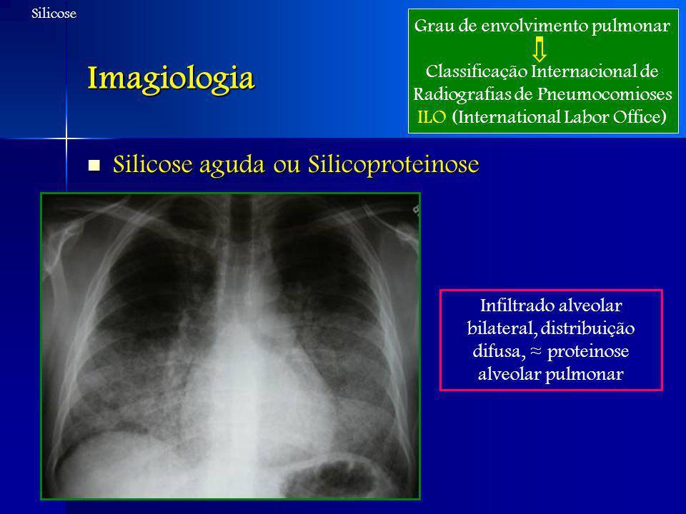 Imagiologia Silicose aguda ou Silicoproteinose Silicose aguda ou Silicoproteinose Grau de envolvimento pulmonar Classificação Internacional de Radiogr