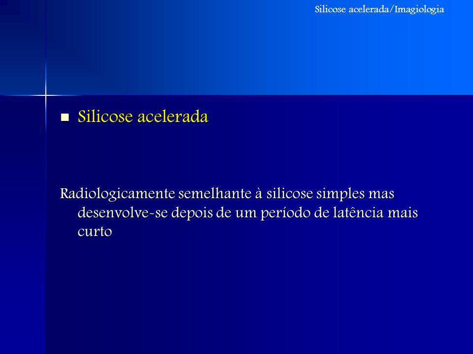 Silicose acelerada Silicose acelerada Radiologicamente semelhante à silicose simples mas desenvolve-se depois de um período de latência mais curto Sil