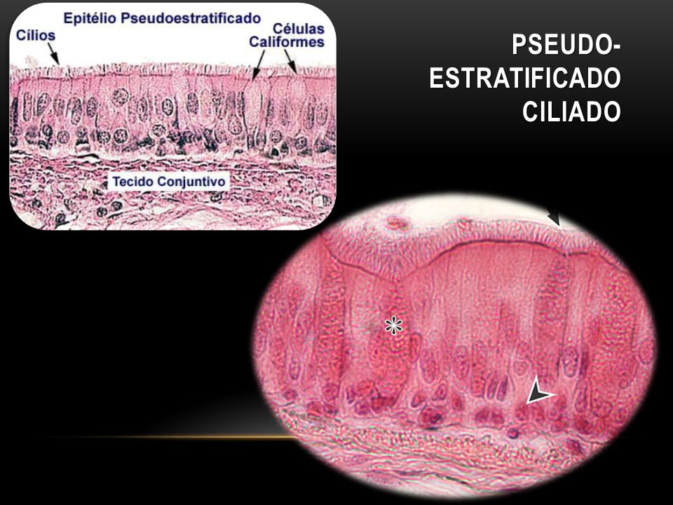 PSEUDO- ESTRATIFICADO CILIADO