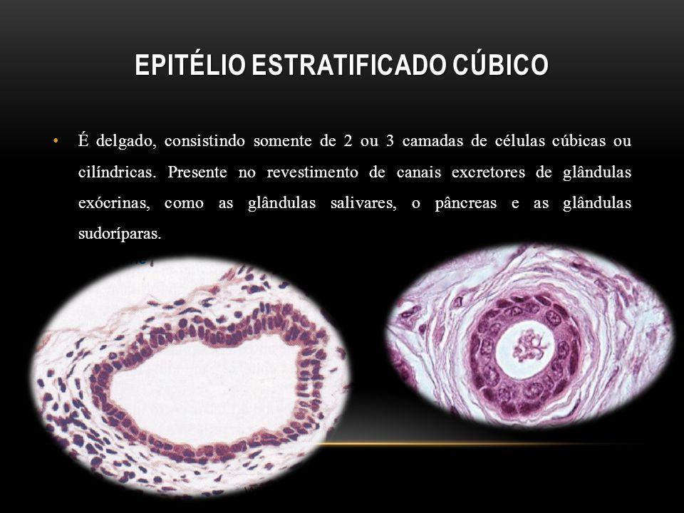 EPITÉLIO ESTRATIFICADO CÚBICO É delgado, consistindo somente de 2 ou 3 camadas de células cúbicas ou cilíndricas. Presente no revestimento de canais e